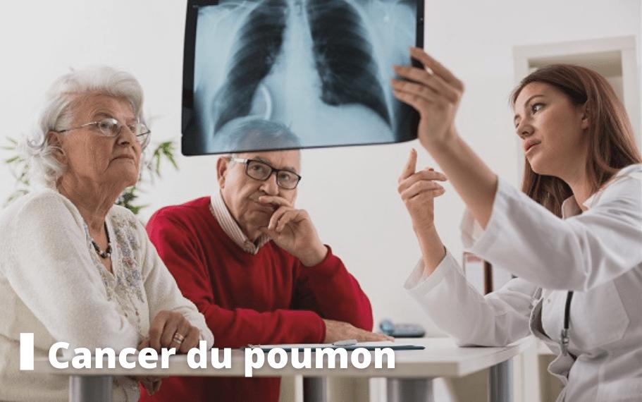 cancer du poumon dossier pasteur lille