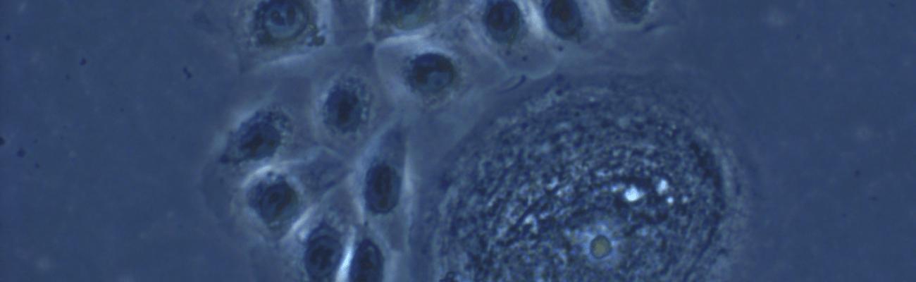 senescence fibrose et cancers recherche